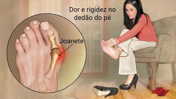 exame-médico-pm-edital-joanete-reprova