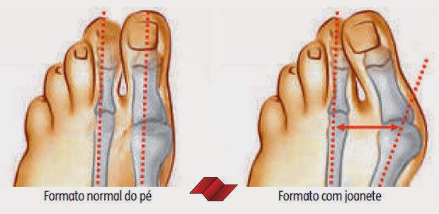 exame-medico-pm-joanete-edital